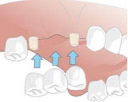 werden von der chemo die zähne weiß
